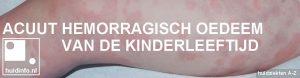 Acuut hemorragisch oedeem van de kinderleeftijd Finkelstein