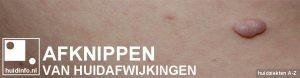 afknippen huid fibromen