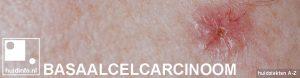 basaalcelcarcinoom overzicht