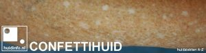 confettihuid hypomelanosis guttata