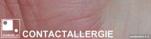 contact allergisch eczeem