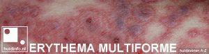 erythema multiforme