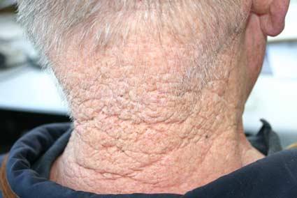 landmanshuid schade door zon UV-licht