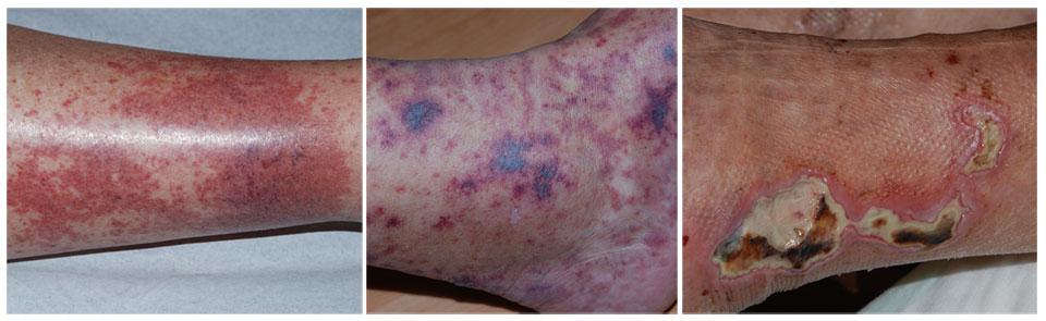leucocytoclastische vasculitis