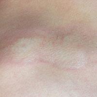 morfea, gelocaliseerde sclerodermie