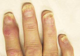 artritis psoriatica gewrichten