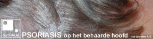 psoriasis capitis behaarde hoofd