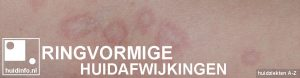 ringvormige huidafwijkingen