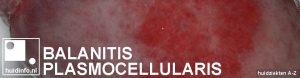 balanitis plasmocellularis van zoon