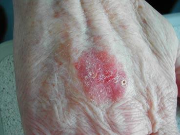 ziekte van bowen