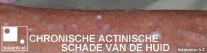 chronische actinische schade van de huid