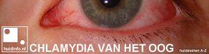 chlamydia van het oog