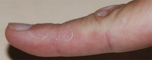 dyshidrotisch eczeem van het type lamellaris sicca