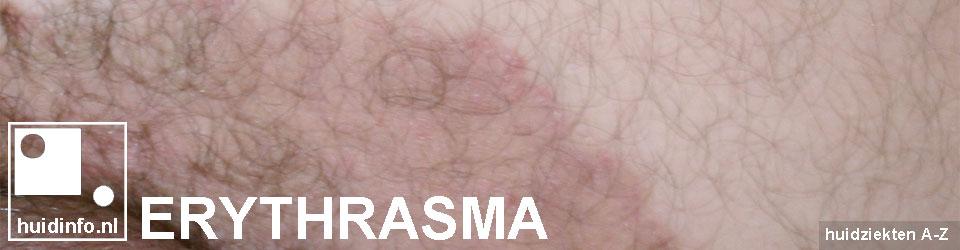 erythrasma lieskring