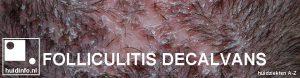 folliculitis decalvans
