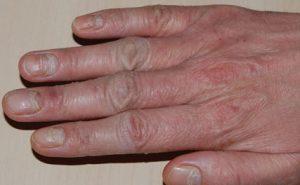 handeczeem irritatief orthoergisch