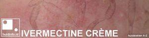 ivermectine creme Soolantra
