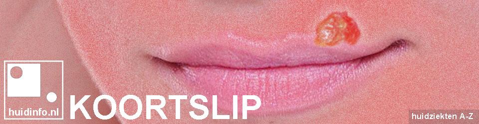 koortslip herpes simplex labialis