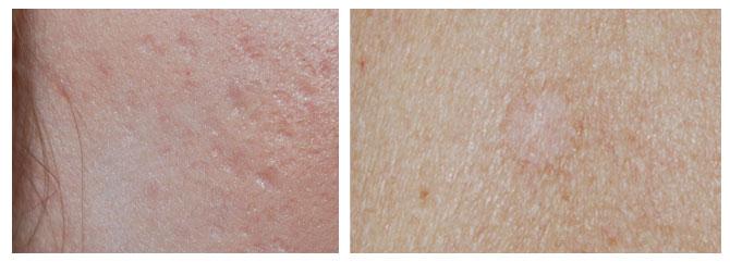 littekens acne
