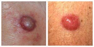 huidkanker merkelcelcarcinoom
