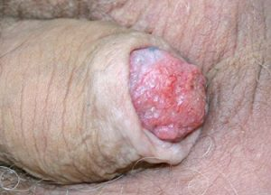 peniscarcinoom