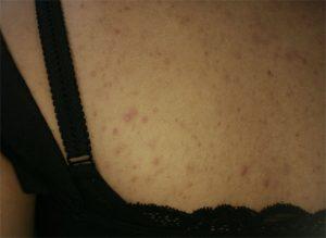 gistpuistjes pityrosporon