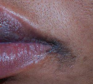 postinflammatoire hyperpigmentatie
