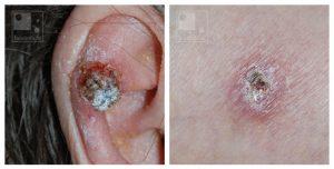 huidkanker plaveiselcelcarcinoom