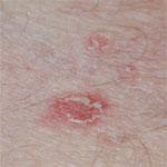 pityriasis lichenoides schilferende plekken