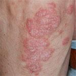 psoriasis schilferende plekken