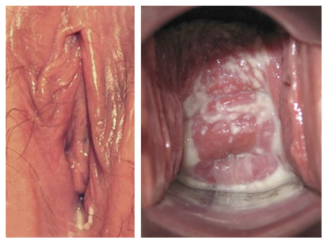 vaginale candida
