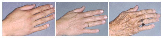 huidveroudering van de hand