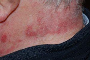 zonne-allergie zon polymorfe lichteruptie allergie