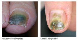 groene nagels