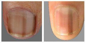 melanonychia pigment streep nagel