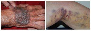 blauwe plek hematoom bloeduitstorting