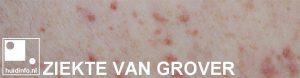 Grover transiente acantholytische dermatose