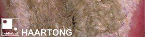 haartong black hairy tongue