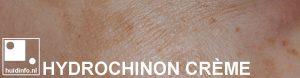 hydrochinon creme bleken huid pigment