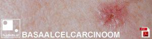 basaalcelcarcinoom basalioom