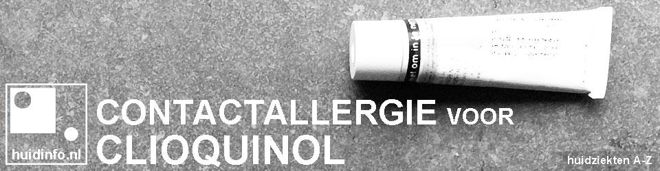 allergie voor clioquinol contacteczeem