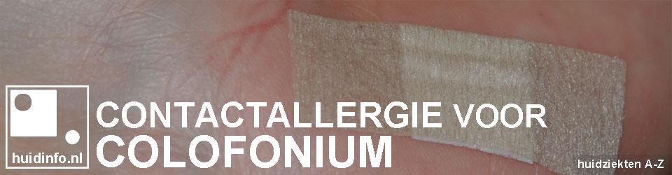 allergie colofonium colophonium lijm pleister kerstboom hars