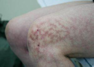 erythema ab igne warmte huid litteken