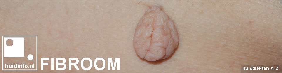 fibroom fibromen gesteeld skintag acrochordon
