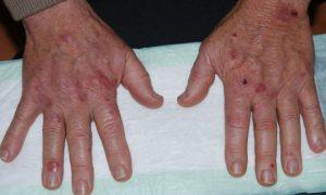 porfyria cutanea tarda porphyria