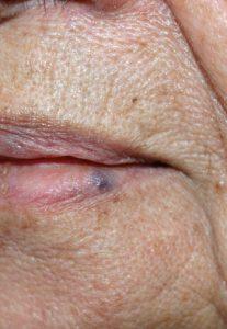 venous lake hemangioom lip