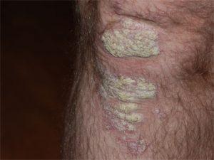 ruwe plekken bij psoriasis