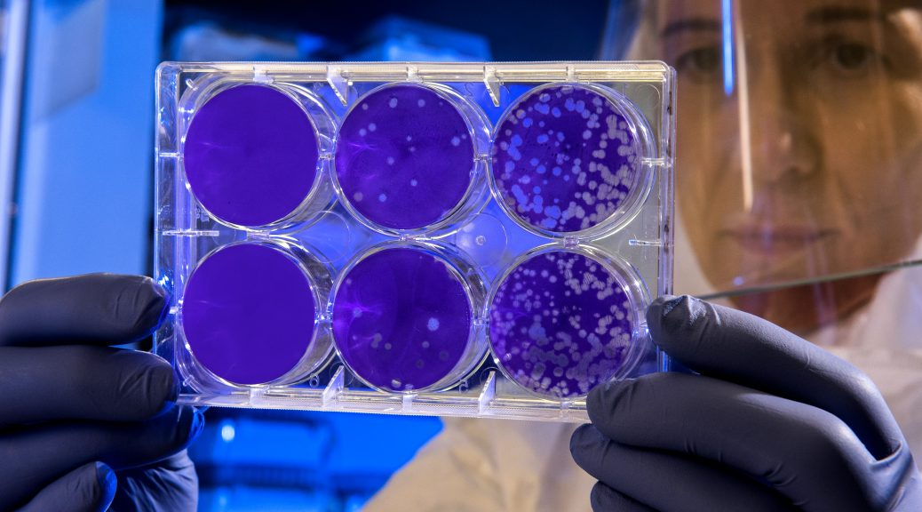 These 3 venture capital investors from the USA invest in biotech start-ups