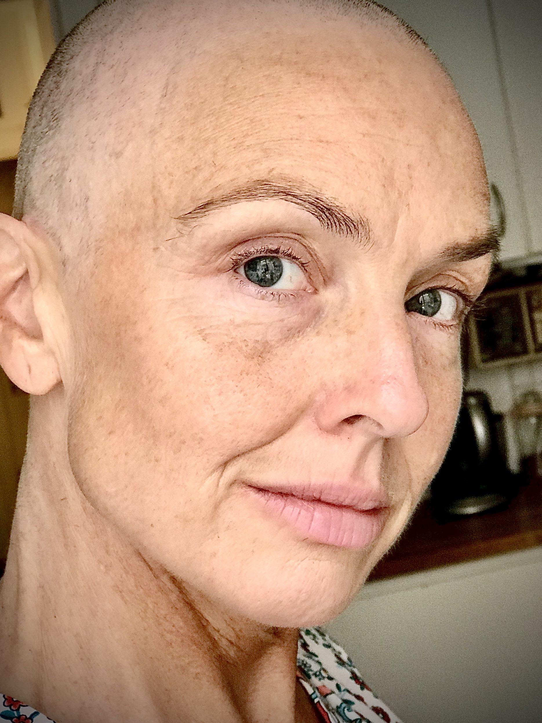Jag har cancer