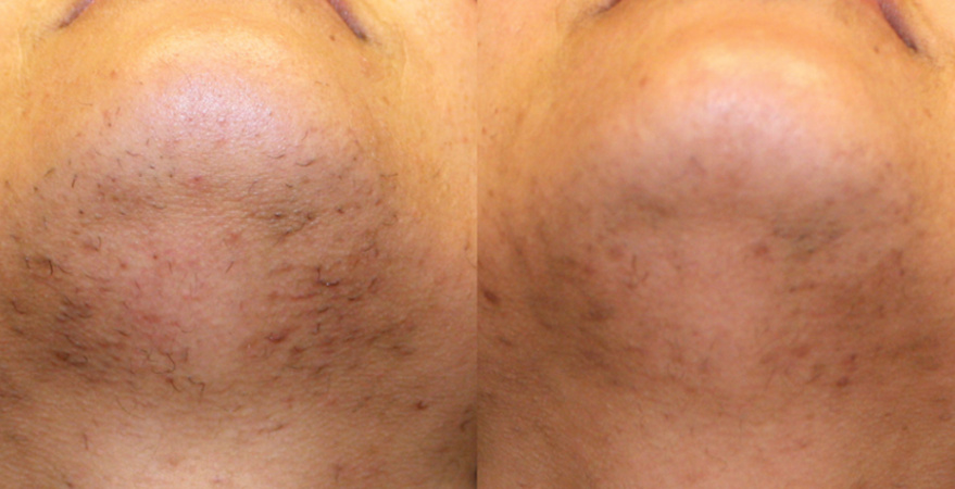 laser hair removal chin